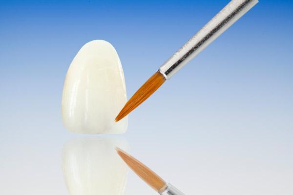Protesi Dentali | Continolo & Partners