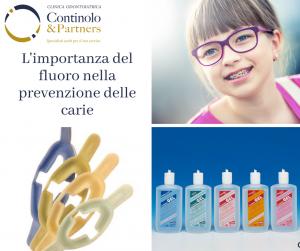 Fluoro e prevenzione della carie | Continolo & Partners