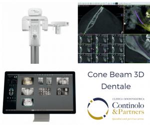 Cone Beam 3D | Continolo & Partners